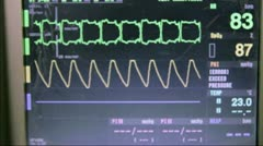 Cardio Monitor in Hospital Stock Footage
