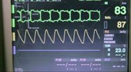Stock Video Footage of Cardio Monitor in Hospital
