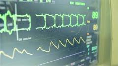 Electrocardio 3 Stock Footage