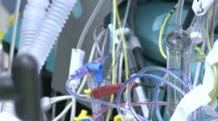 An array of medical tubes and wires - stock footage