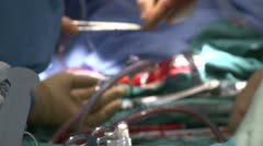 Depth of field of heart surgery (2 of 2) Stock Footage