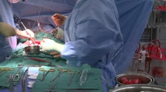 Instrument table during surgery (2 of 2) - stock footage