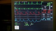 Stock Video Footage of Patient's vital signs