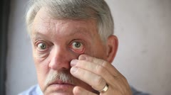 Man checks his bloodshot eyes Stock Footage