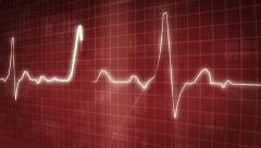 EKG electrocardiogram pulse trace - stock footage