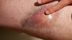Bruise Stock Footage