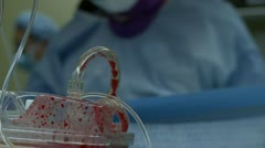 Spinal surgery blood (3 of 6) - stock footage