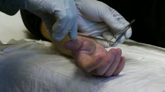 Doctor stitching a patients hand Stock Footage
