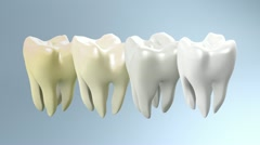 Process of yellow tooth to white Stock Footage