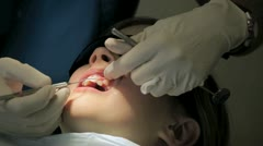 Young girl having her teeth cleaned at a dentist's office. Stock Footage
