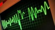 Stock Video Footage of Hospital EKG 2421