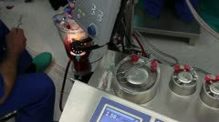 Heart lung bypass machine HD 1080p Stock Footage
