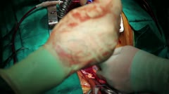 Scene of an operation, surgical series 19 HD 1080p Stock Footage