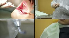 Dentist - Close-up of patient open mouth during oral checkup Stock Footage