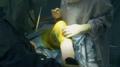 Knee surgery (2 of 15) Stock Footage