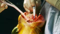 Knee surgery (13 of 15) Stock Footage