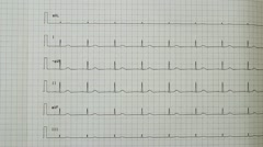 EKG Readout Stock Footage