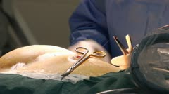 Hands surgeon Stock Footage