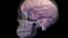 Female Skull Brain Stock Footage