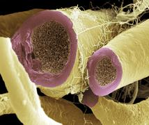 nerve fibres, sem - stock photo