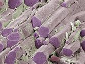 Stock Photo of skeletal muscle fibres, sem