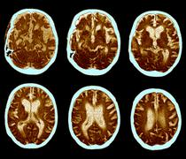 Brain with alzheimer's disease, ct scan Stock Photos