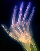 arthritic hand, x-ray - stock photo
