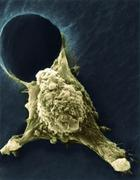 Metastasis of a cancerous cell, sem Stock Photos