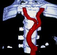 false-colour 3-d ct image of abdominal aorta - stock photo