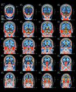 Healthy brain, mri scans Stock Photos