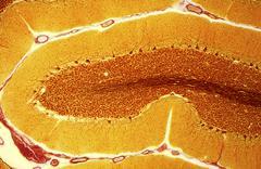 purkinje nerve cells, light micrograph - stock photo