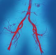 Stock Photo of normal abdominal arteries, angiogram