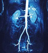 normal renal arteries, mra scan - stock photo