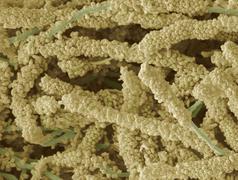 Plaque-forming bacteria, sem Stock Photos