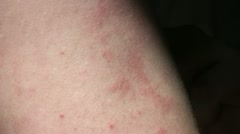 Stock Video Footage of Skin Allergy