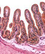 gall bladder lining, light micrograph - stock photo
