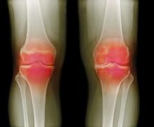 arthritic knees, x-ray - stock photo
