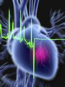 Heart attack and ecg trace Stock Illustration