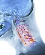 Arthritis of the neck, x-ray Stock Photos