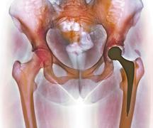 Loosened hip replacement, x-ray Stock Photos