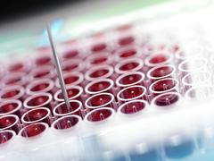 automated blood screening - stock photo