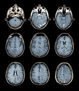 Normal brain, mri scans Stock Photos