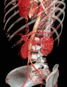 Stock Illustration of normal abdomen, 3d ct scan