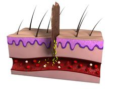 Wound infection, artwork Stock Illustration