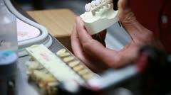 Dental implants (brushing) Stock Footage