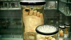 Gruesome preserved feet in glass jars Stock Footage