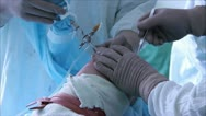 Stock Video Footage of arthroscopy , orthopedic surgery 2