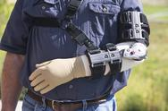 Man wearing prosthetic arm brace after arm surgery 2493.jpg Stock Photos