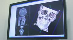 Ultrasound image of skull rotates on screen closeup Stock Footage
