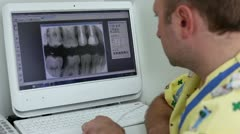 Dentist watch x-ray picture on computer display Stock Footage